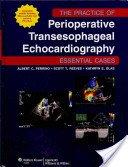 The Practice of Perioperative Transesophageal Echocardiography: Essential Cases