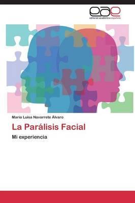 La Parálisis Facial
