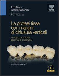 La protesi fissa con margini di chiusura verticali