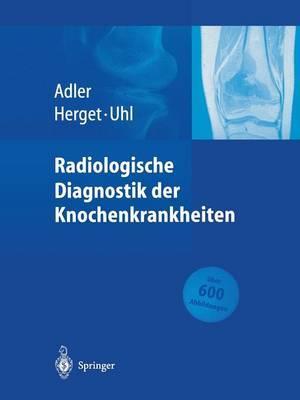 Radiologische Diagnostik Der Knochenkrankheiten