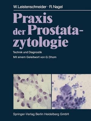 Praxis Der Prostatazytologie