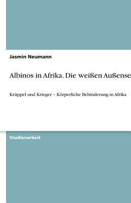 Albinos in Afrika. Die weißen Außenseiter