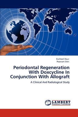 Periodontal Regeneration With Doxcycline In Conjunction With Allograft