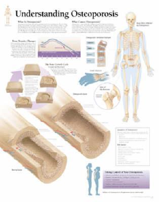 Understanding Osteop...