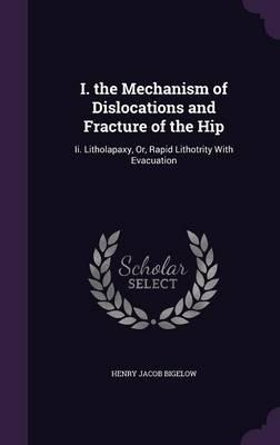 I. the Mechanism of Dislocations and Fracture of the Hip