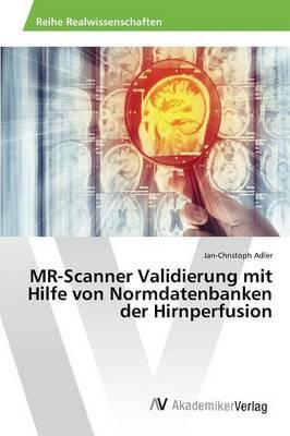 MR-Scanner Validierung mit Hilfe von Normdatenbanken der Hirnperfusion