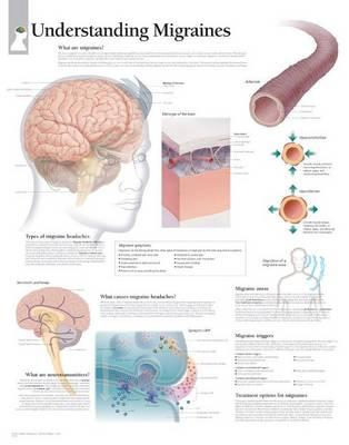 Understanding Migrai...