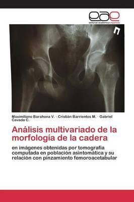 Análisis multivariado de la morfología de la cadera