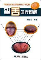 望舌诊疗图解