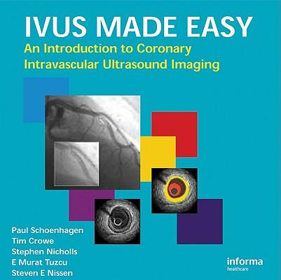 IVUS Made Easy