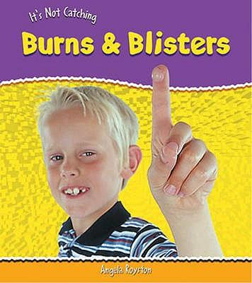 Burns and Blisters (It's Not Catching)