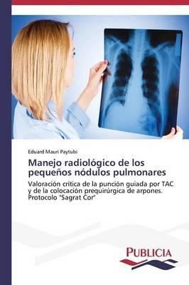 Manejo radiológico de los pequeños nódulos pulmonares