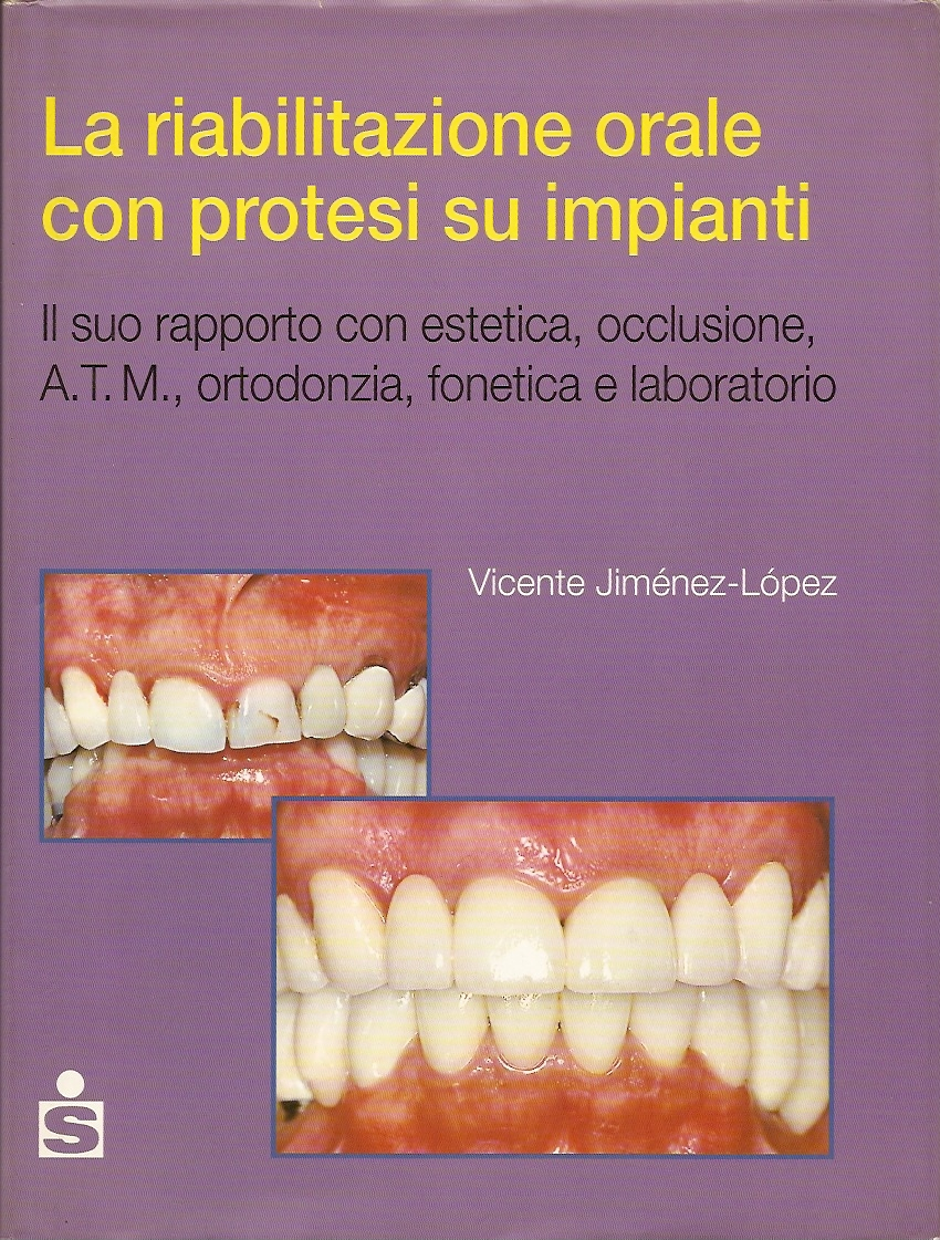 La riabilitazione orale con protesi su impianti