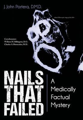 Nails That Failed