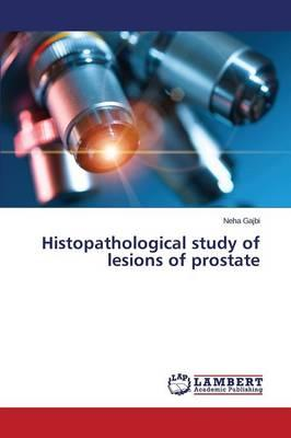 Histopathological study of lesions of prostate
