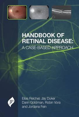 Handbook of Retinal Disease