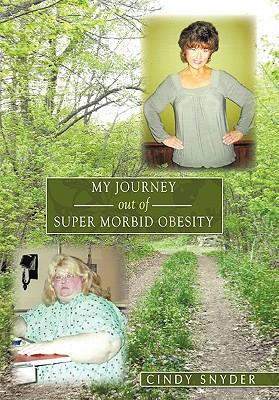 My Journey Out of Super Morbid Obesity