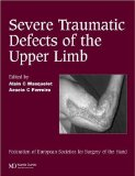 Severe Traumatic Defects of the Upper Limb