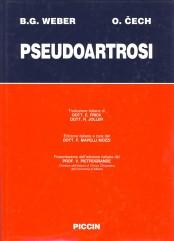 Pseudoartrosi