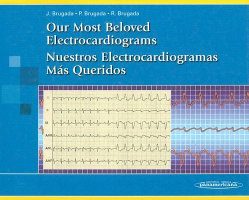 Our most beloved electrocardiograms = Nuestros electrocardiogramas más que