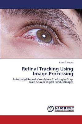 Retinal Tracking Using Image Processing