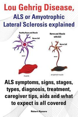 Lou Gehrig Disease, ALS or Amyotrophic Lateral Sclerosis explained. ALS symptoms, signs, stages, types, diagnosis, treatment, caregiver tips, aids and what to expect all covered.