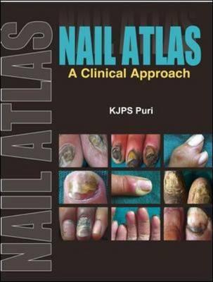 Nail Atlas