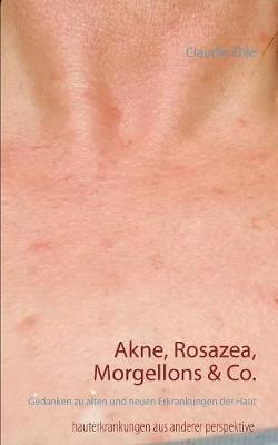 Akne, Rosazea, Morgellons & Co