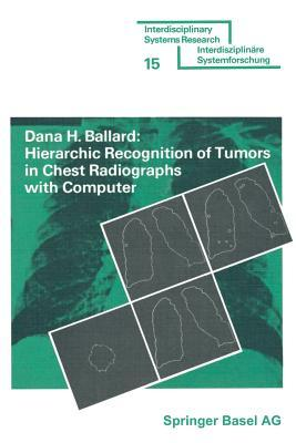 Hierarchic Recognition of Tumors in Chest Radiographs With Computer