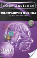 Extreme Science: Transplanting Your Head
