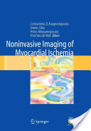 Noninvasive Imaging of Myocardial Ischemia