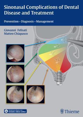 Sinonasal Complication of Dental Disease and Treatment