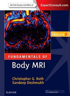 Fundamentals of Body MRI, 2nd Edition
