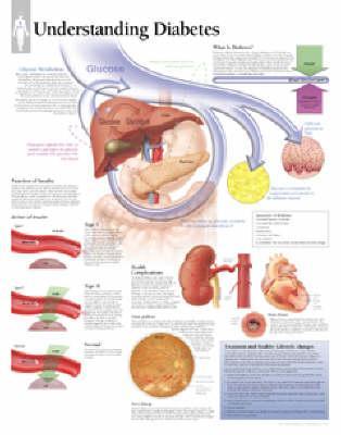 Understanding Diabet...