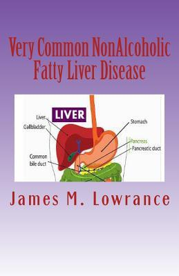 Very Common Non-Alcoholic Fatty Liver Disease
