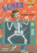 Bones -Troll