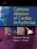Catheter Ablation of...