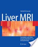 Liver MRI
