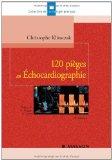 120 pièges en échocardiographie