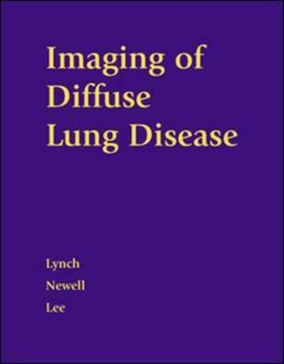 Imaging of Diffuse Lung Disease