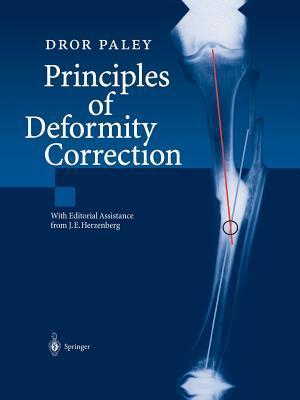 Principles of Deformity Correction