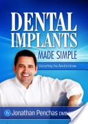 Dental Implants Made Simple