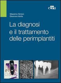 La diagnosi e il trattamento delle perimplantiti
