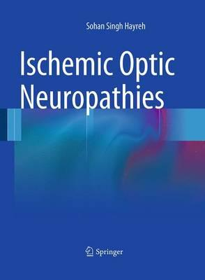 Ischemic Optic Neuropathies