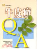 牛皮癬Q&A